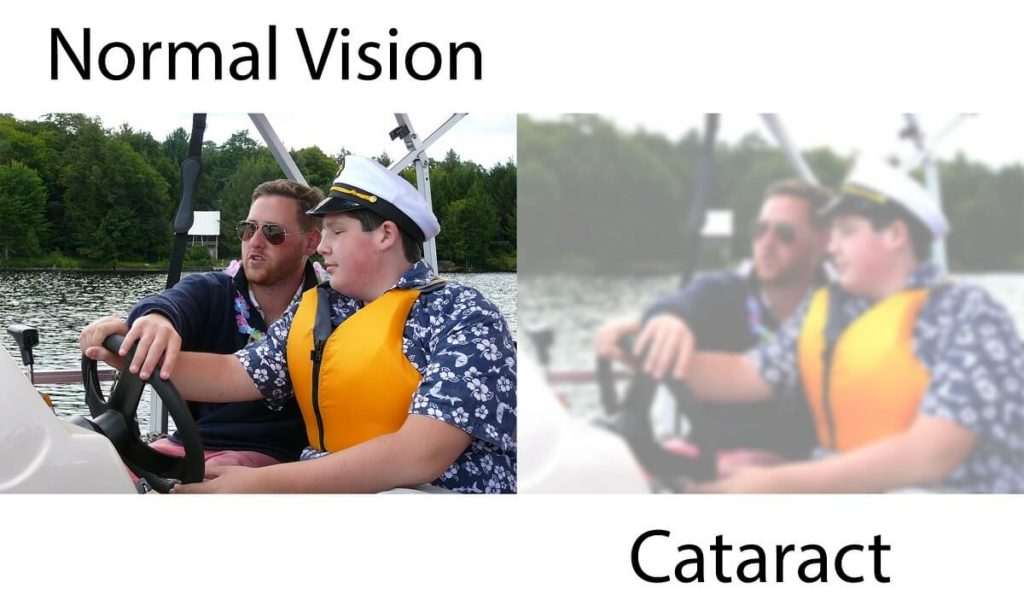 Two images intended to be identical as a side by side comparison of normal vision compared to the blurred vision of cataracts.