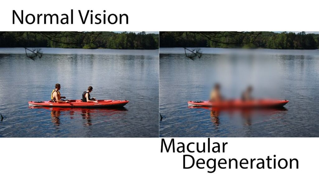 Two images intended to be identical as a side by side comparison of normal vision compared to the vision with macular degeneration.