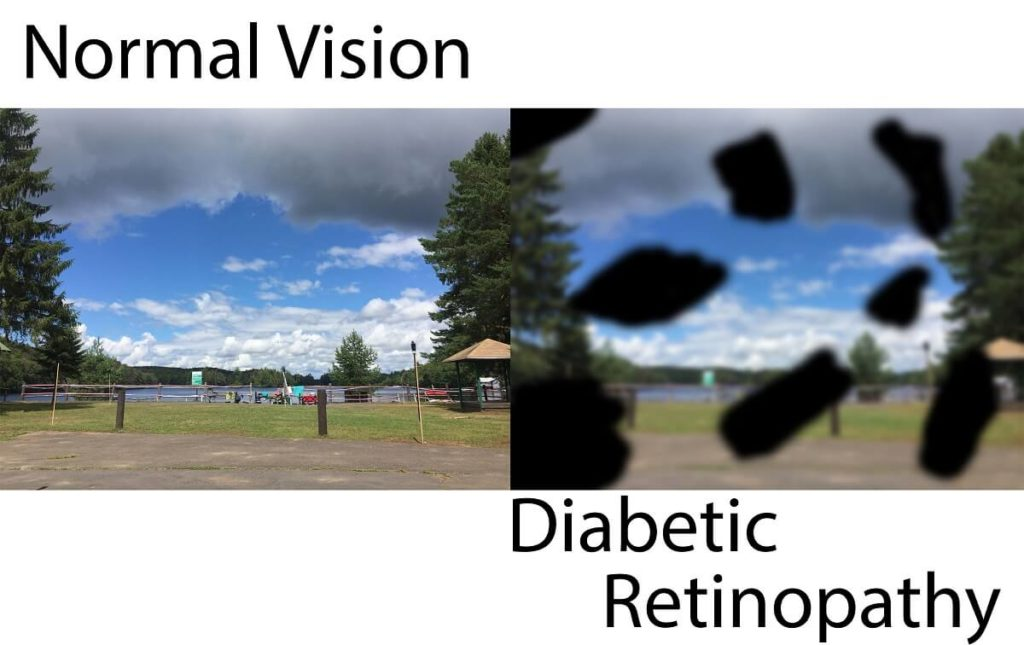Two images intended to be identical as a side by side comparison of normal vision compared to the vision with diabetic retinopathy.