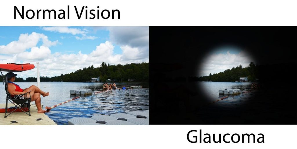 Two images intended to be identical as a side by side comparison of normal vision compared to the vision with glaucoma.